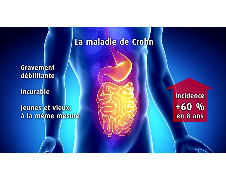 סרט תדמית בשפה הצרפתית עבור Alma Bio Therapeutics