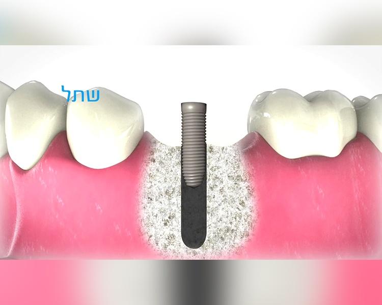 הדרכת מושגי יסוד ברפואת שיניים – סרט הדרכה גרסת דוגמה מקוצררת